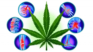 Can Medical Cannabis Relieve Chronic Pain